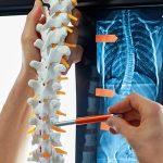 dolencia columna vertebral