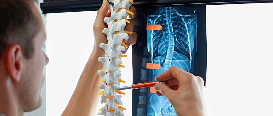 Scoliosis treatment to correct deviations of the spine