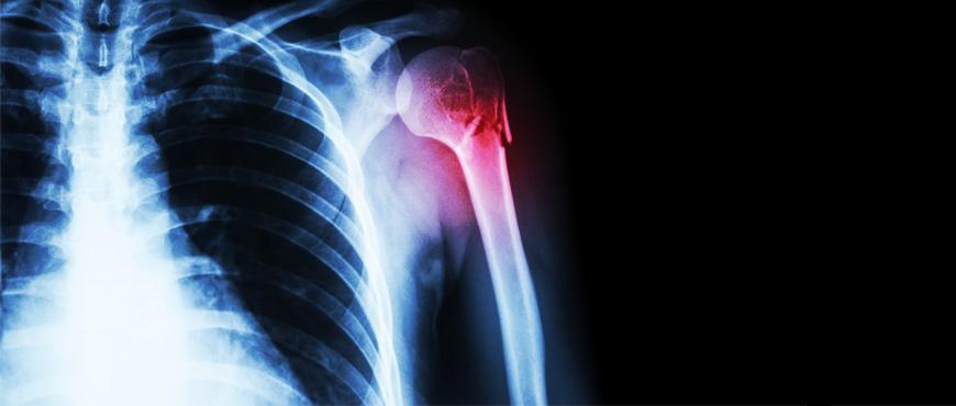 Una solución eficaz y cómoda para la fractura del húmero