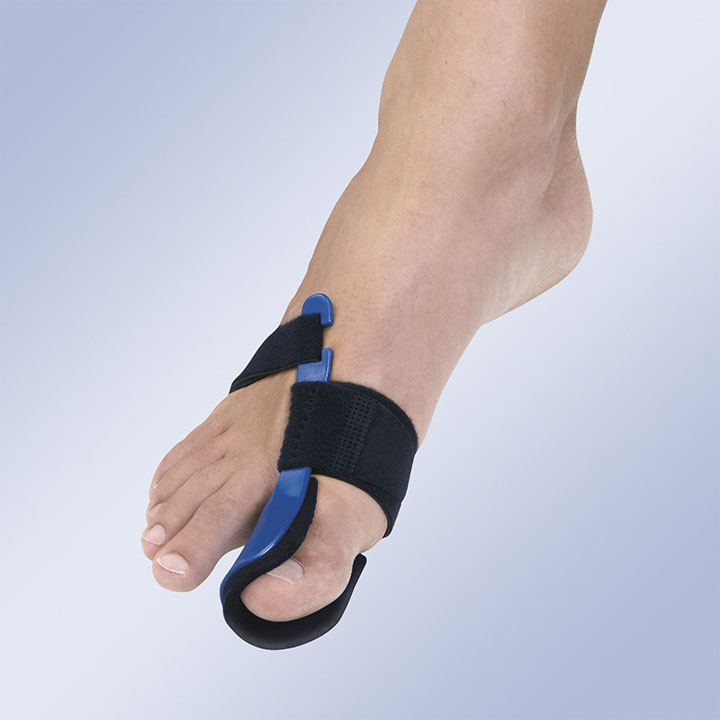 HALLUX-VALGUS IN THERMOPLASTIC