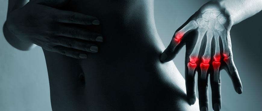 Tratamientos paliativos para la artrosis de mano