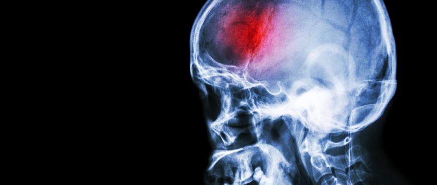 Detección temprana y prevención, claves para paliar los efectos de un ataque cerebrovascular