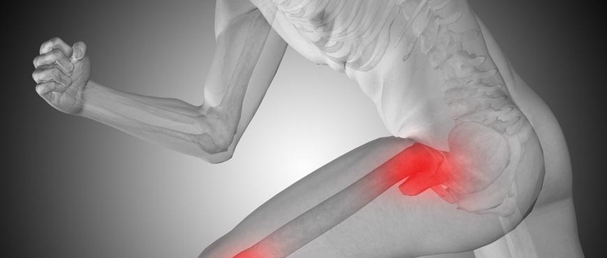 Avances y novedades en la cirugía de caderas
