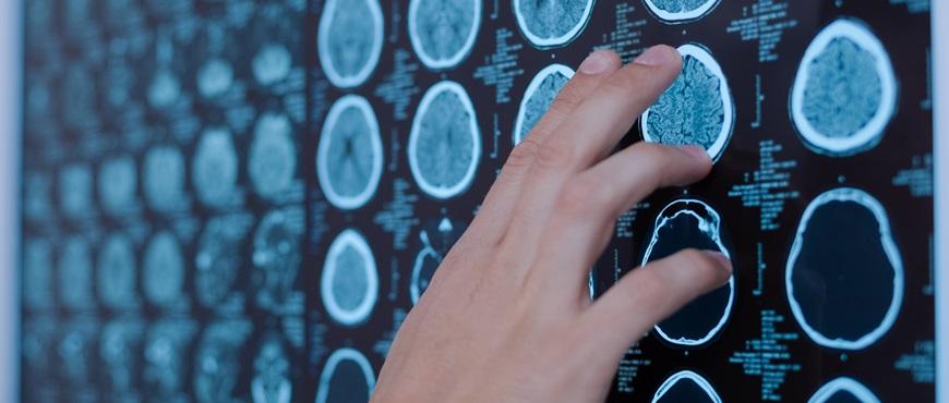 Cardiología y Neurología se unen para mejorar el diagnóstico del ictus