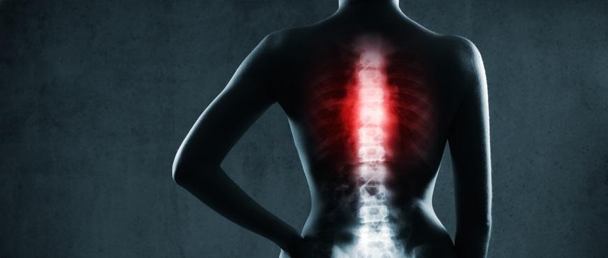¿Por qué se producen las fracturas vertebrales?