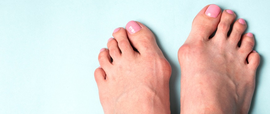 What is Hallux valgus? What measures should I take?