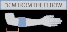 EPICONDYLITIS ARMBAND