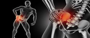 ortesis de cadera