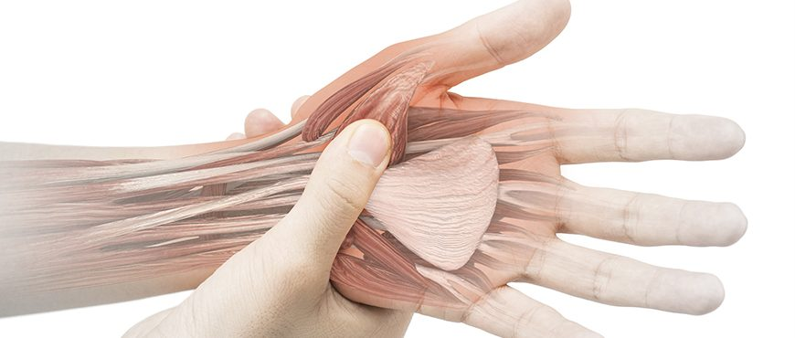Cómo evitar las lesiones de los tendones extensores de la mano