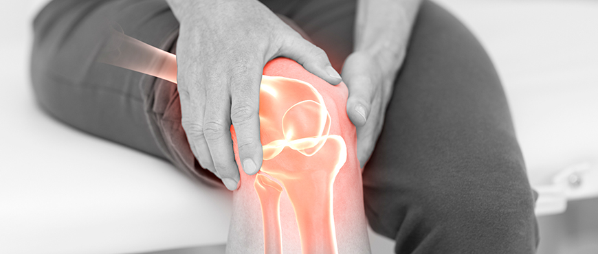 Gonarthrosis or osteoarthritis of the knee, how to relieve the pain?