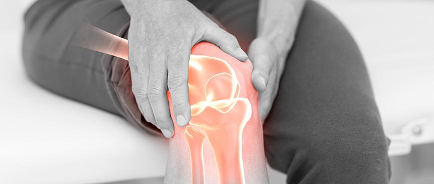 Que especialista trata las rodillas valgas