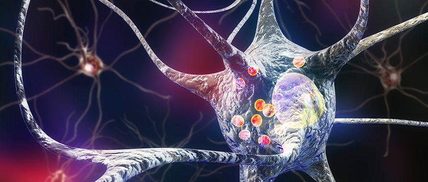 Parkinson's, an autoimmune disease