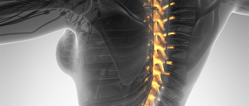 ¿Cuáles son las posibilidades de volverse impotente después de la cirugía de espalda?